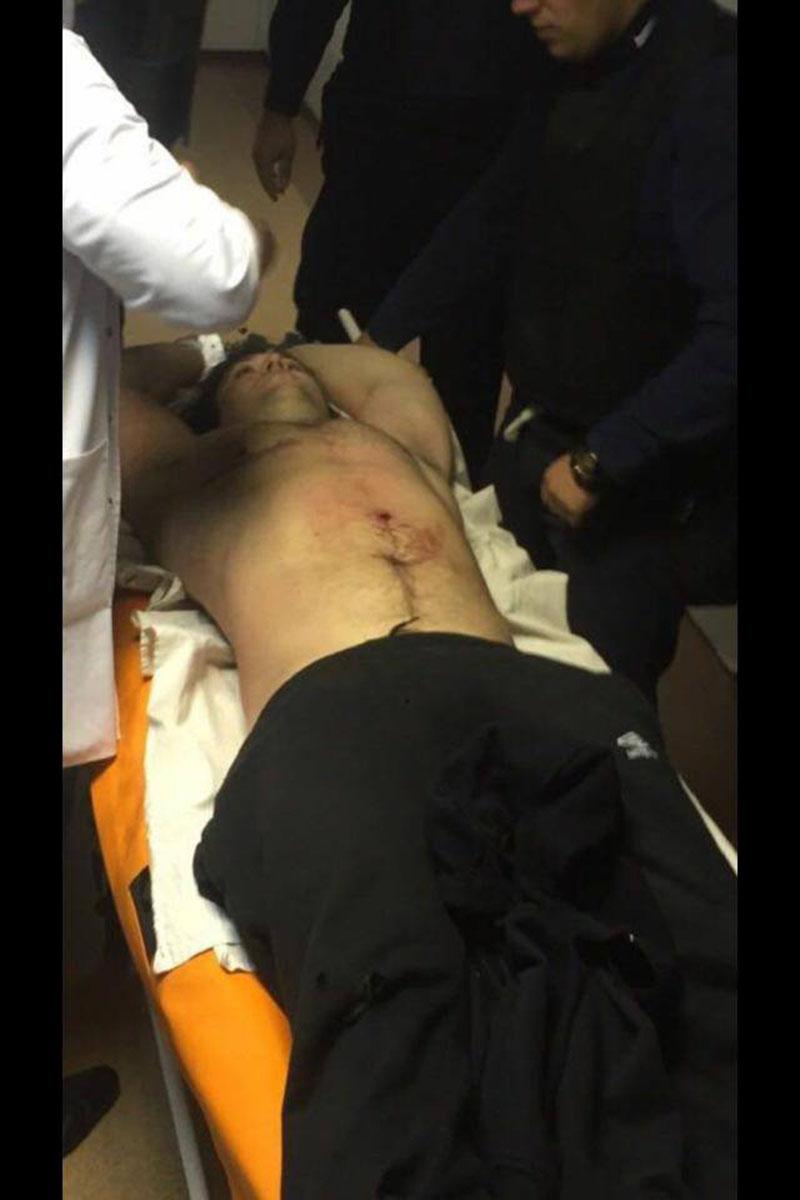 zaderzhan-podozrevaemyj-v-ubijstve-policejskih-pugachev-2